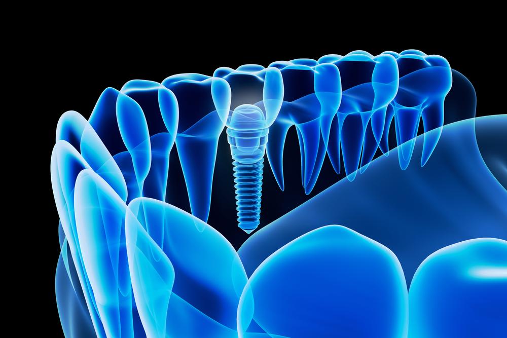 implantprotezinekadarsurede